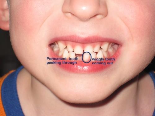 labeled teeth